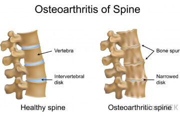 spinal1